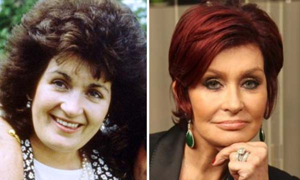 Top 10 Most Expensive Plastic Surgeries Ever