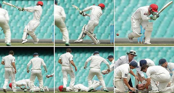 Worst cricket injuries Phil Hughes